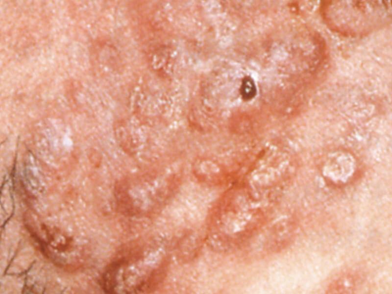 Acne Grade IV