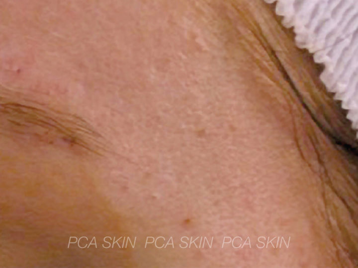 Adolescent Acne - After