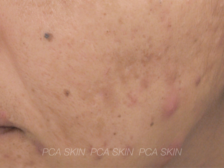 Adult Acne - Before