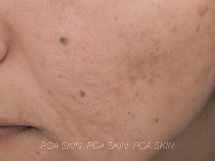 Adult Acne - After