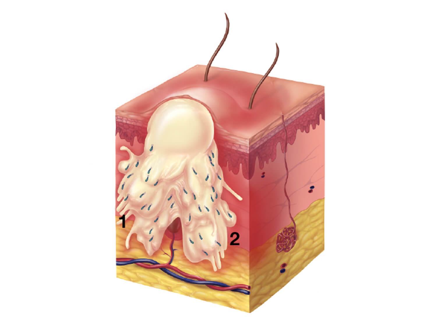 Illustration of a nodule