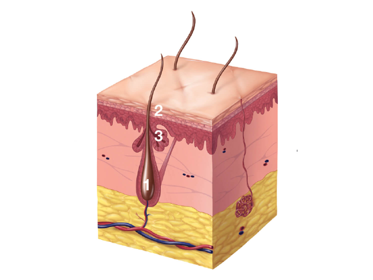 Illustration of a normal follicle