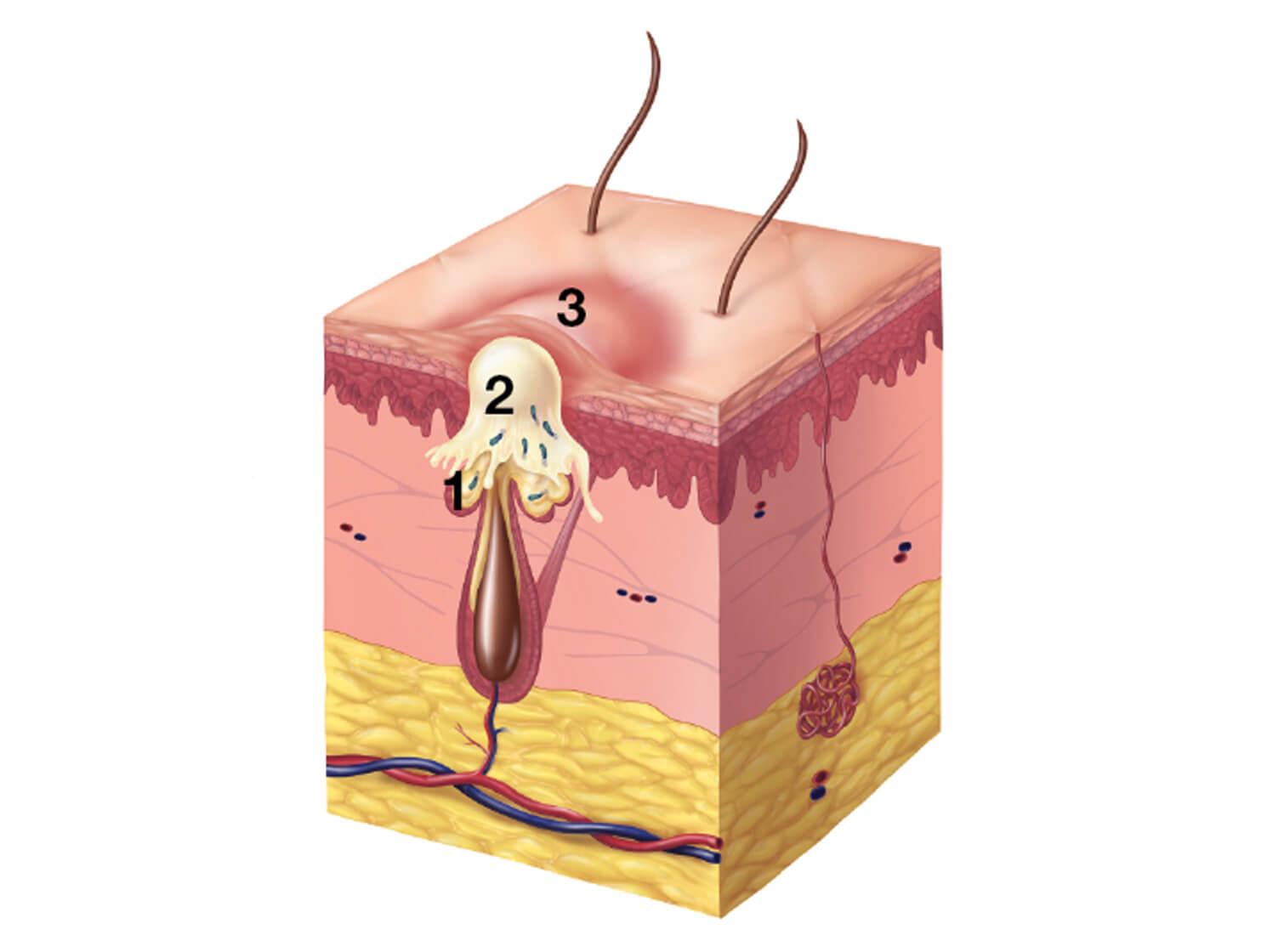 Illustration of a papule