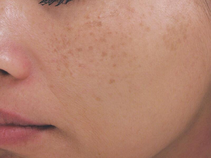 UV-Induced Hyperpigmentation