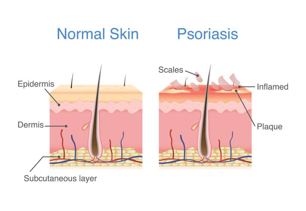 Illustration of normal skin layers versus psoriasis