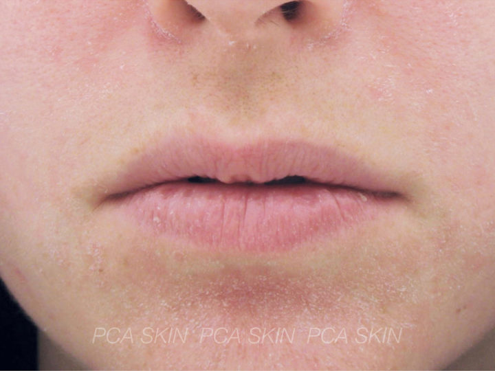 Decreased barrier function and excessive dryness - Before
