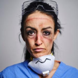 Face showing damage from Personal Protective Equipment