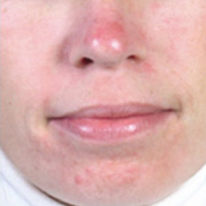 Face showing redness from environmental stressors