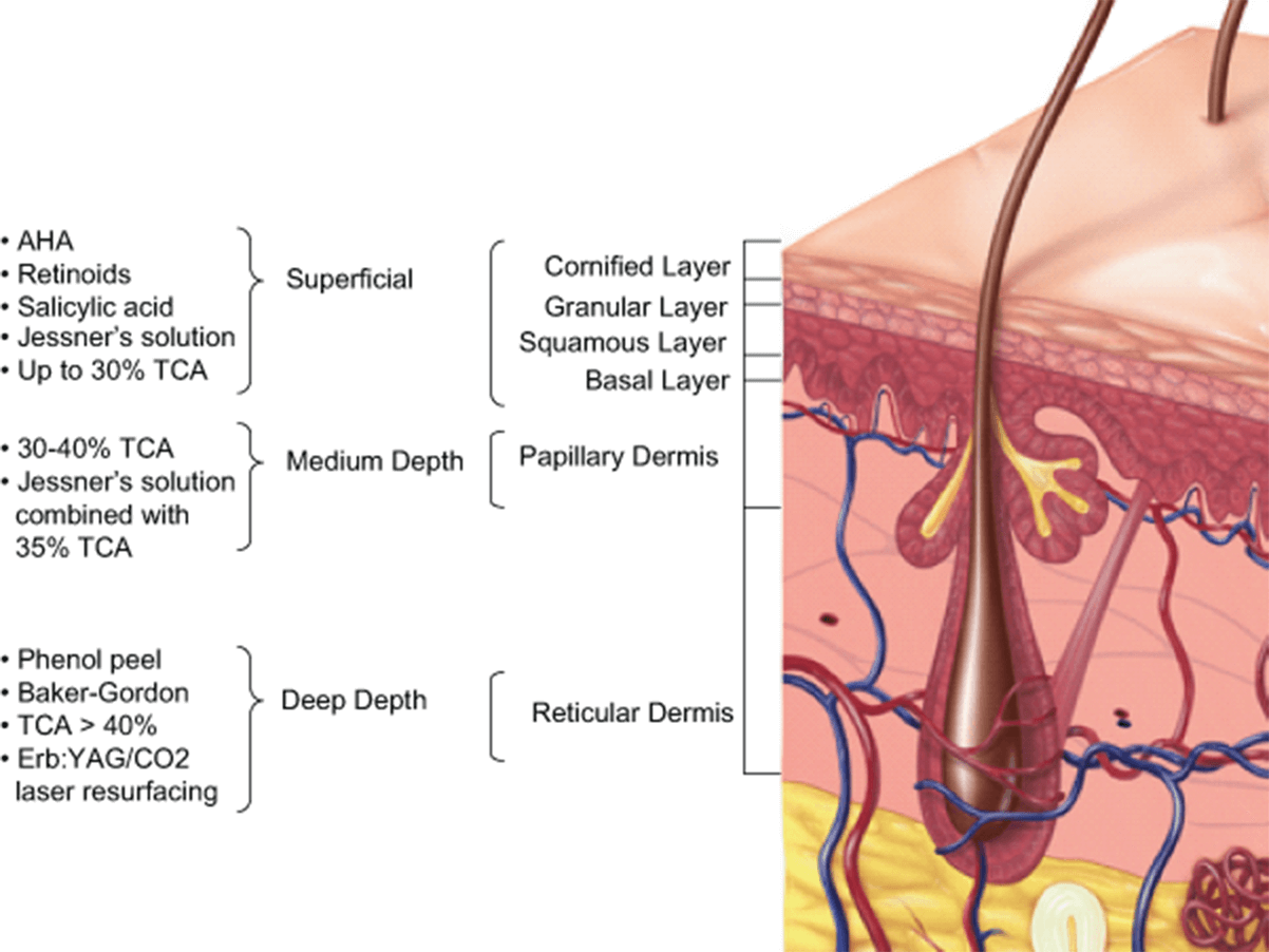 Illustrated diagram of the layers of skin
